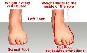 Normal foot, Flat foot