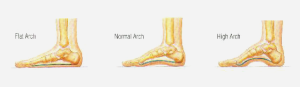 dr foot Arch Pain