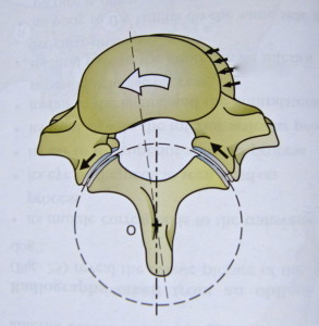 rotated_vertebra