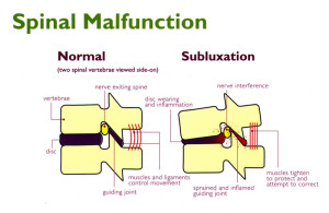 Spinal Malfunction